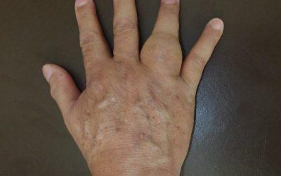 An Enlarging Lump in the Finger | Tumour of the Finger | Giant Cell Tumour of The Phalanx