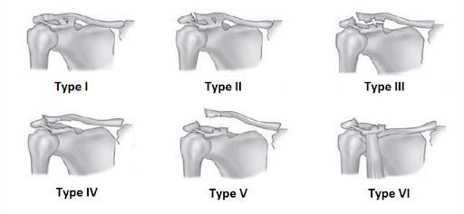 Shoulder Injury Types